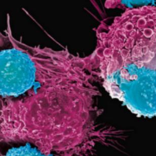 Hematology Aspirant